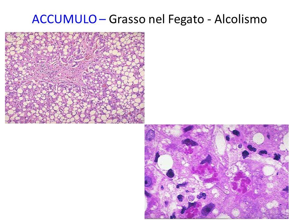 Infiammazione e necrosi: macrofagi che accumulano colesterolo perchè fagocitano membrane di cellule danneggiate in luoghi in cui c'è danno o infiammazione in atto