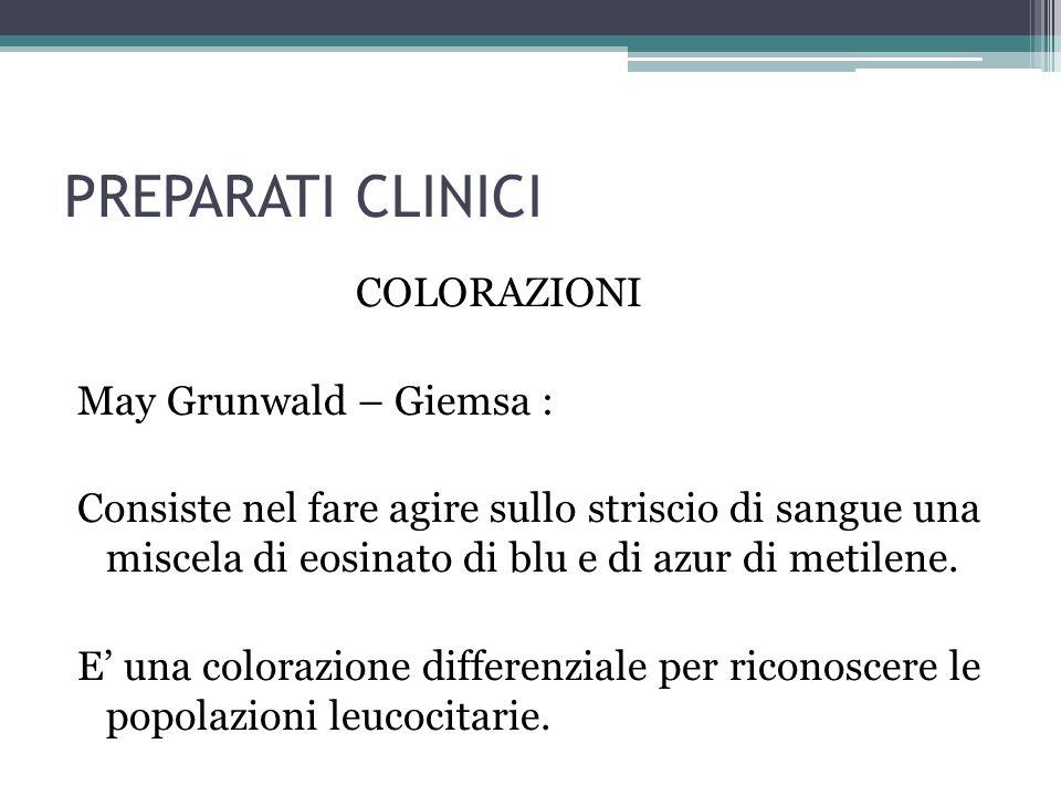 PREPARATI CLINICI COLORAZIONI May Grunwald – Giemsa : Consiste nel fare agire sullo striscio di sangue una miscela di eosinato di blu e di azur di met