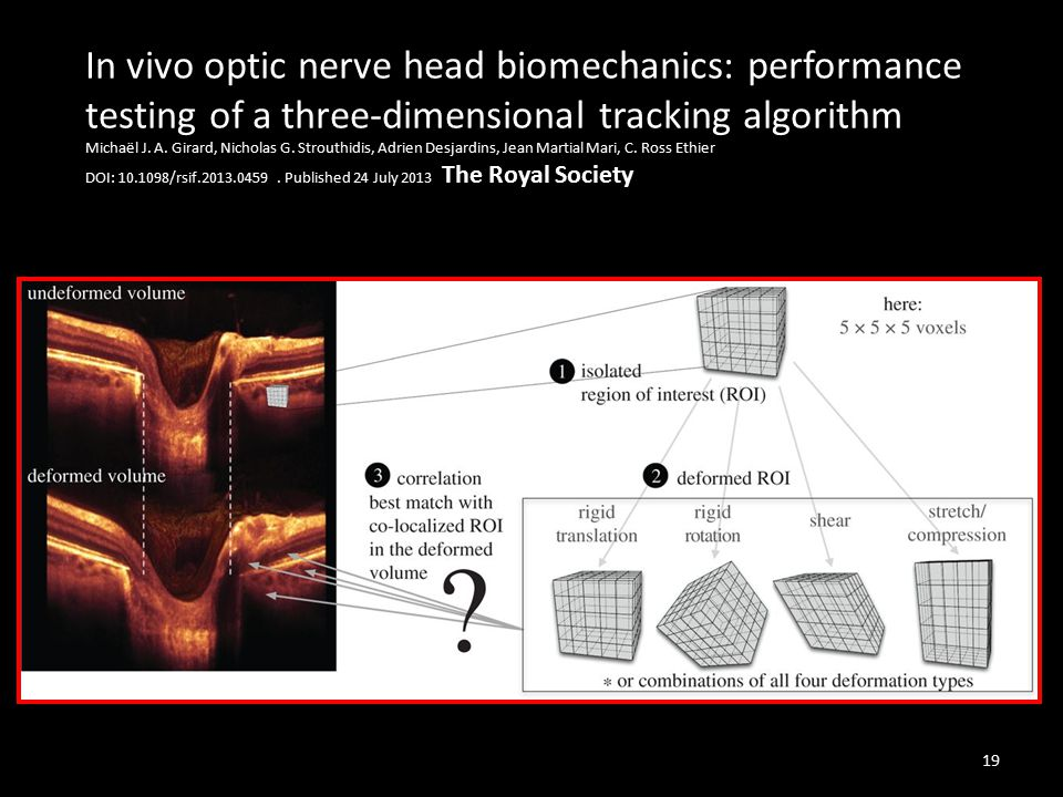 In vivo optic nerve head biomechanics: performance testing of a three-dimensional tracking algorithm Michaël J. A. Girard, Nicholas G. Strouthidis, Ad