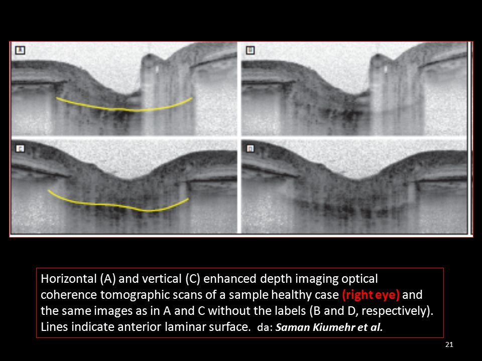 Horizontal (A) and vertical (C) enhanced depth imaging optical coherence tomographic scans of a sample healthy case (right eye) and the same images as