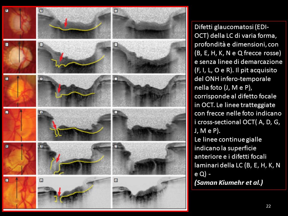 Difetti glaucomatosi (EDI- OCT) della LC di varia forma, profondità e dimensioni, con (B, E, H, K, N e Q frecce rosse) e senza linee di demarcazione (