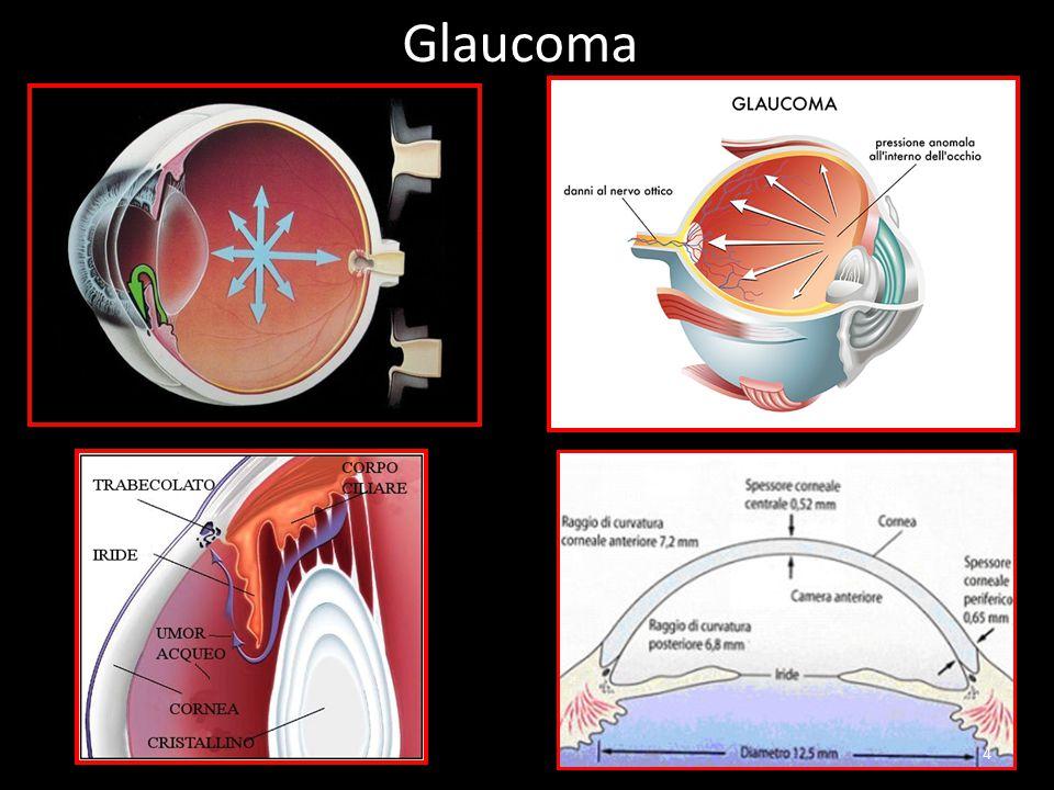 Glaucoma 4