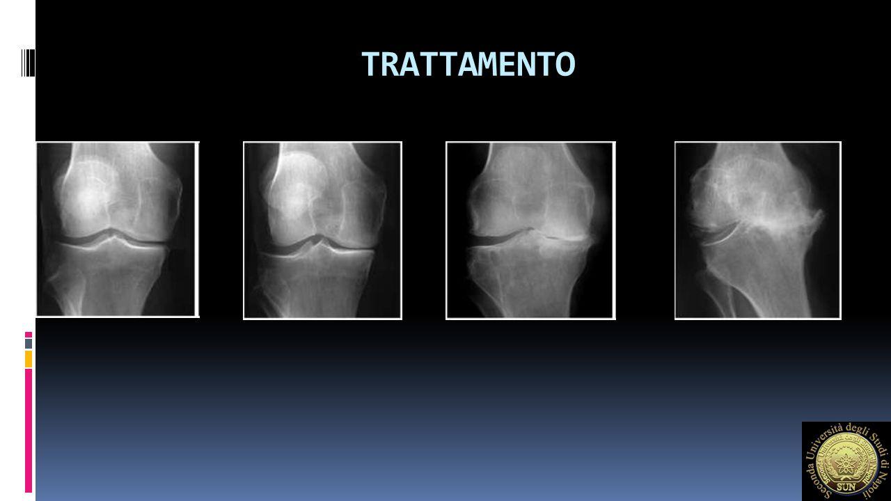 TERAPIA MEDICA 1) Fast Acting Drugs for Osteoarthritis -Analgesici -FANS -Corticosteroidi / AI 2) Slow Acting Drugs for Osteoarthritis -Condrointinsolfato -Acido Ialuronico (AI) -Glucosamina solfato (Lequense 1994)