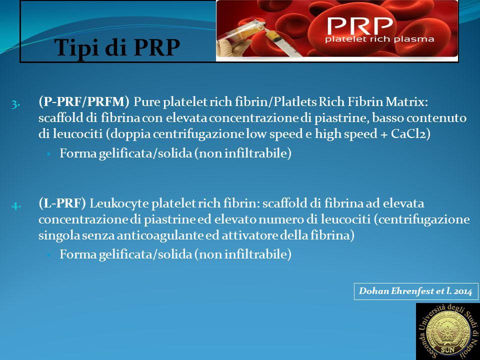Tipi di PRP 3. (P-PRF/PRFM) Pure platelet rich fibrin/Platlets Rich Fibrin Matrix: scaffold di fibrina con elevata concentrazione di piastrine, basso