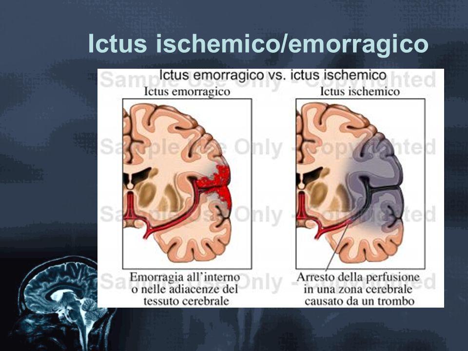 Ictus ischemico/emorragico