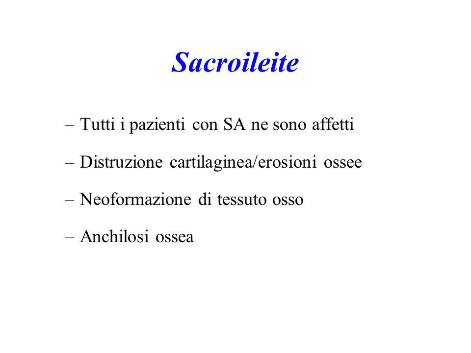 Sacroileite –Tutti i pazienti con SA ne sono affetti –Distruzione cartilaginea/erosioni ossee –Neoformazione di tessuto osso –Anchilosi ossea