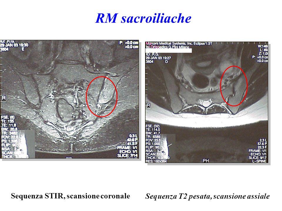 Sequenza STIR, scansione coronale Sequenza T2 pesata, scansione assiale RM sacroiliache
