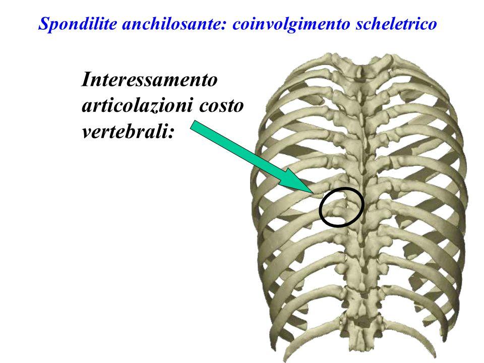Spondilite anchilosante: coinvolgimento scheletrico Interessamento articolazioni costo vertebrali: Limitazione dell'escursione respiratoria della gabbia toracica