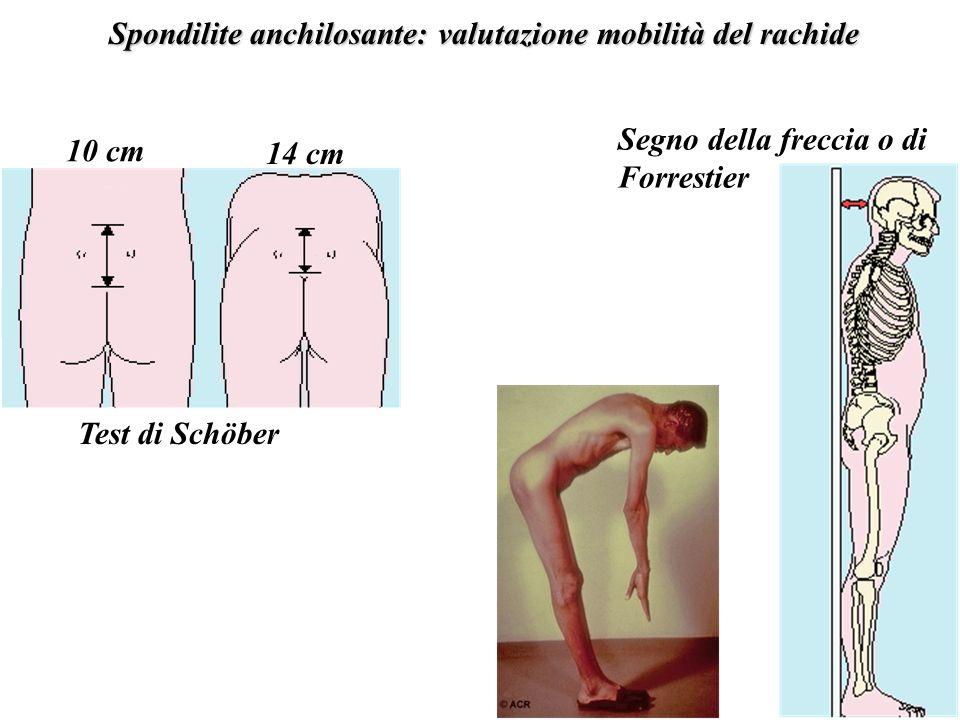 Spondilite anchilosante: valutazione mobilità del rachide Test di Schöber 10 cm 14 cm Segno della freccia o di Forrestier