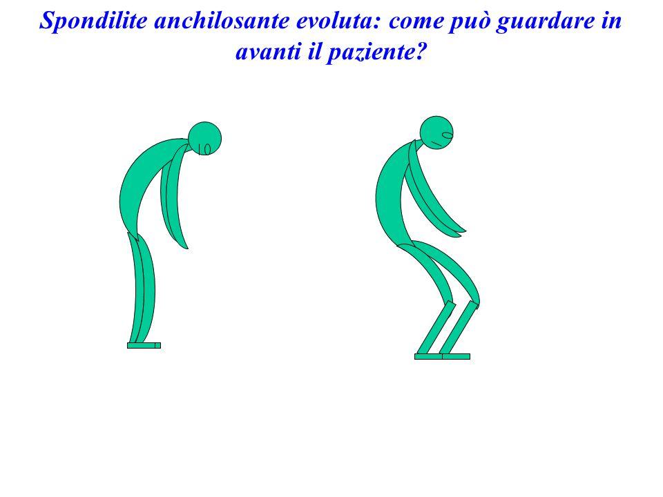 Spondilite anchilosante evoluta: come può guardare in avanti il paziente?