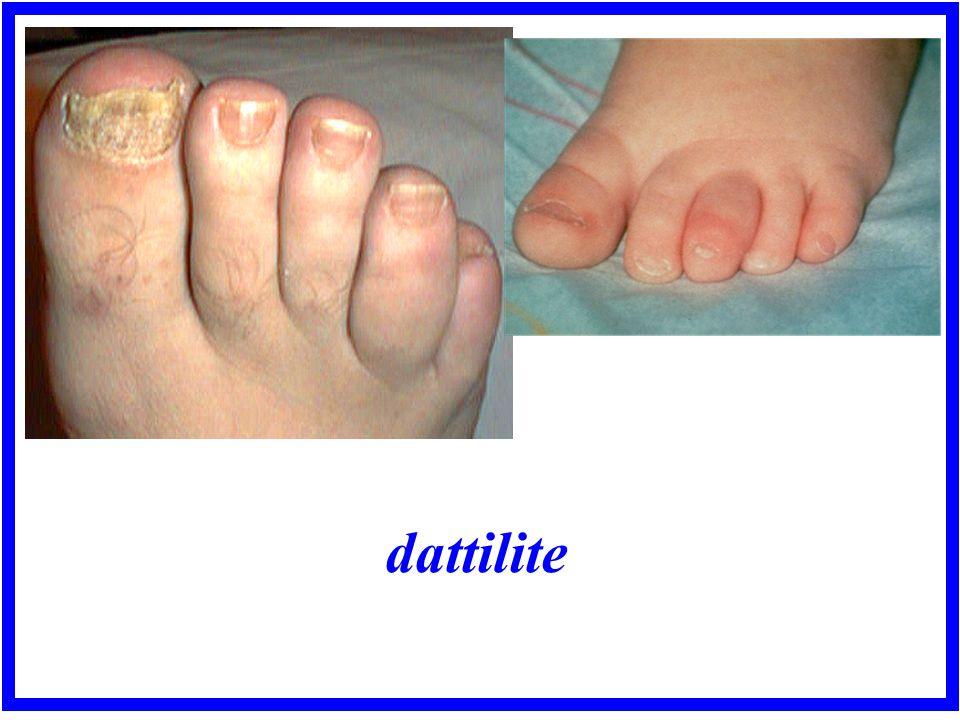 dattilite