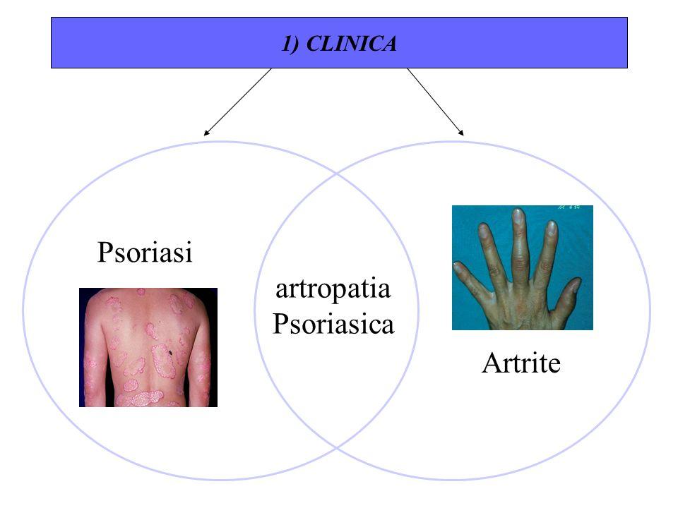 Psoriasi Artrite artropatia Psoriasica 1) CLINICA