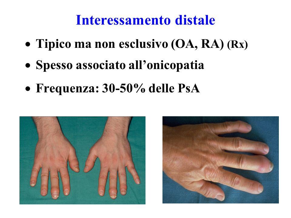 Interessamento distale  Tipico ma non esclusivo (OA, RA) (Rx)  Spesso associato all'onicopatia  Frequenza: 30-50% delle PsA