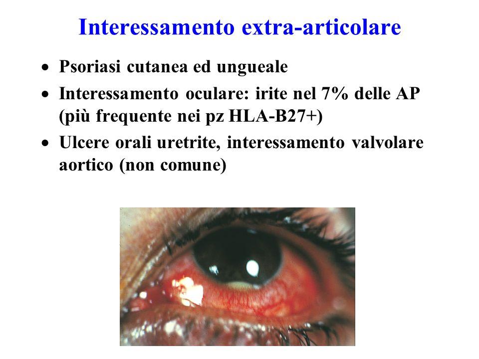 Interessamento extra-articolare  Psoriasi cutanea ed ungueale  Interessamento oculare: irite nel 7% delle AP (più frequente nei pz HLA-B27+)  Ulcere orali uretrite, interessamento valvolare aortico (non comune)
