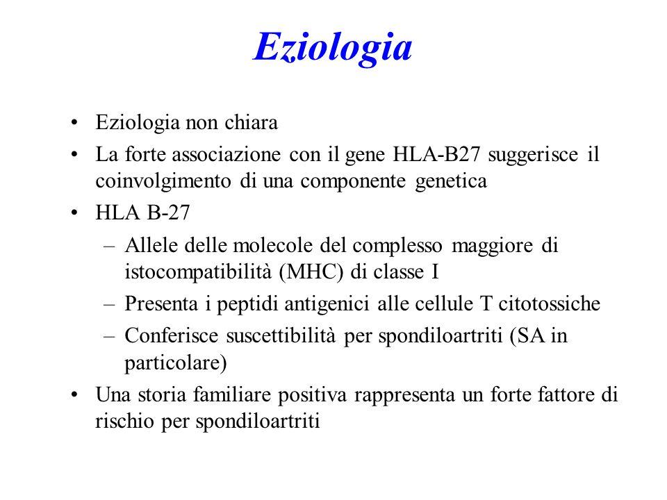 Eziologia Eziologia non chiara La forte associazione con il gene HLA-B27 suggerisce il coinvolgimento di una componente genetica HLA B-27 –Allele delle molecole del complesso maggiore di istocompatibilità (MHC) di classe I –Presenta i peptidi antigenici alle cellule T citotossiche –Conferisce suscettibilità per spondiloartriti (SA in particolare) Una storia familiare positiva rappresenta un forte fattore di rischio per spondiloartriti