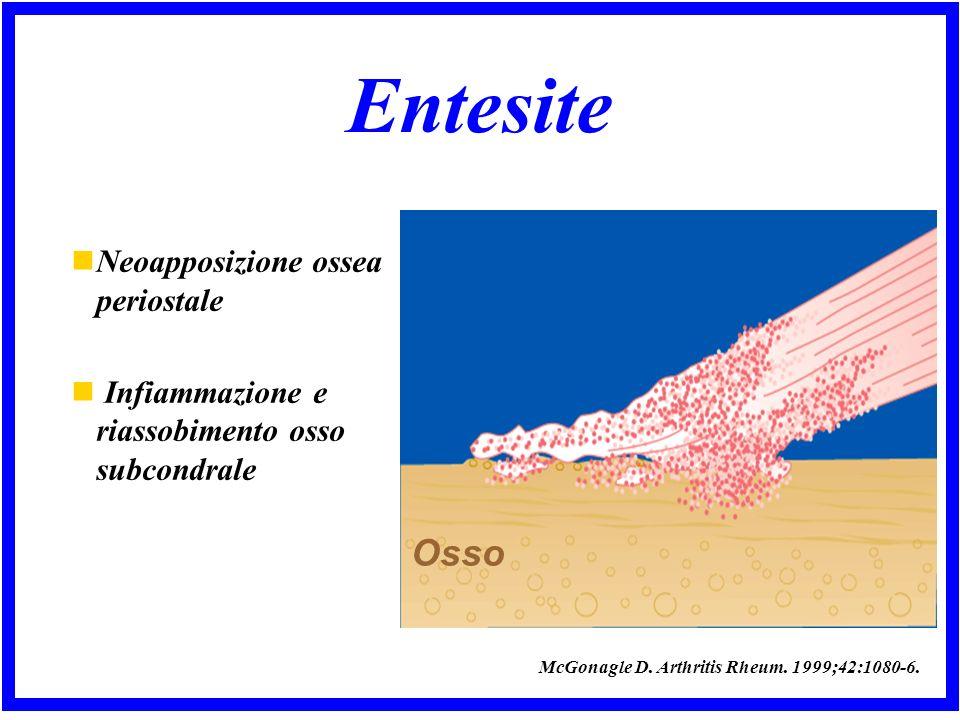 Entesite Neoapposizione ossea periostale Infiammazione e riassobimento osso subcondrale Osso McGonagle D.