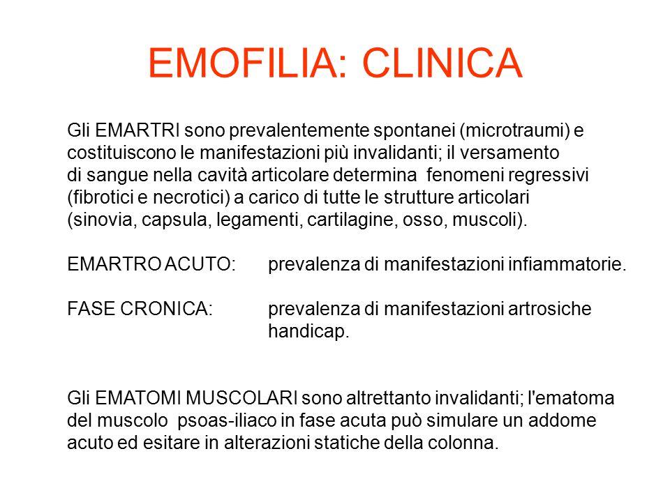 Gli EMARTRI sono prevalentemente spontanei (microtraumi) e costituiscono le manifestazioni più invalidanti; il versamento di sangue nella cavità artic