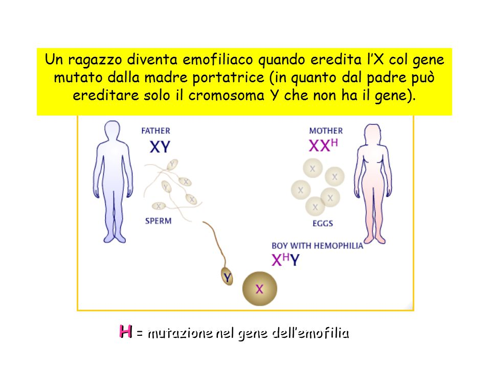  L'emofilia nelle donne è estremamente rara: - unione fra padre emofilico e madre portatrice - estrema inattivazione cromosoma X normale in femmine portatrici (eterozigoti ) - anomalie a carico del cromosoma X ( s.