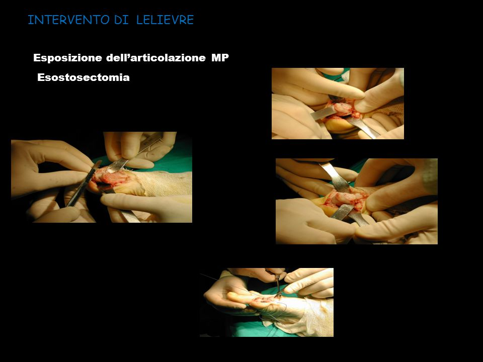 INTERVENTO DI LELIEVRE Esposizione dell'articolazione MP Esostosectomia
