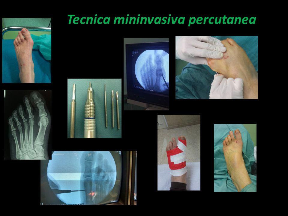 Tecnica mininvasiva percutanea
