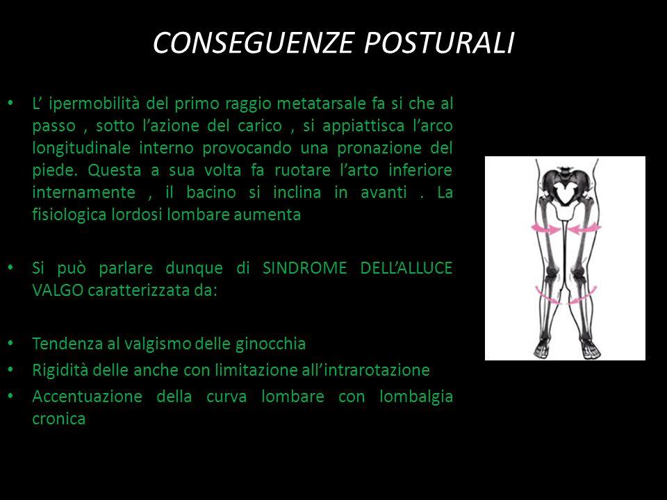 CONSEGUENZE POSTURALI L' ipermobilità del primo raggio metatarsale fa si che al passo, sotto l'azione del carico, si appiattisca l'arco longitudinale interno provocando una pronazione del piede.