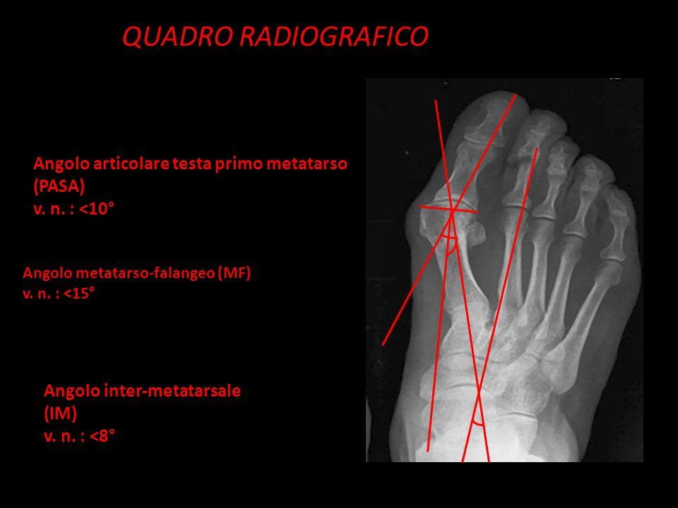 QUADRO RADIOGRAFICO Angolo metatarso-falangeo (MF) v. n. : <15° Angolo inter-metatarsale (IM) v. n. : <8° Angolo articolare testa primo metatarso (PAS