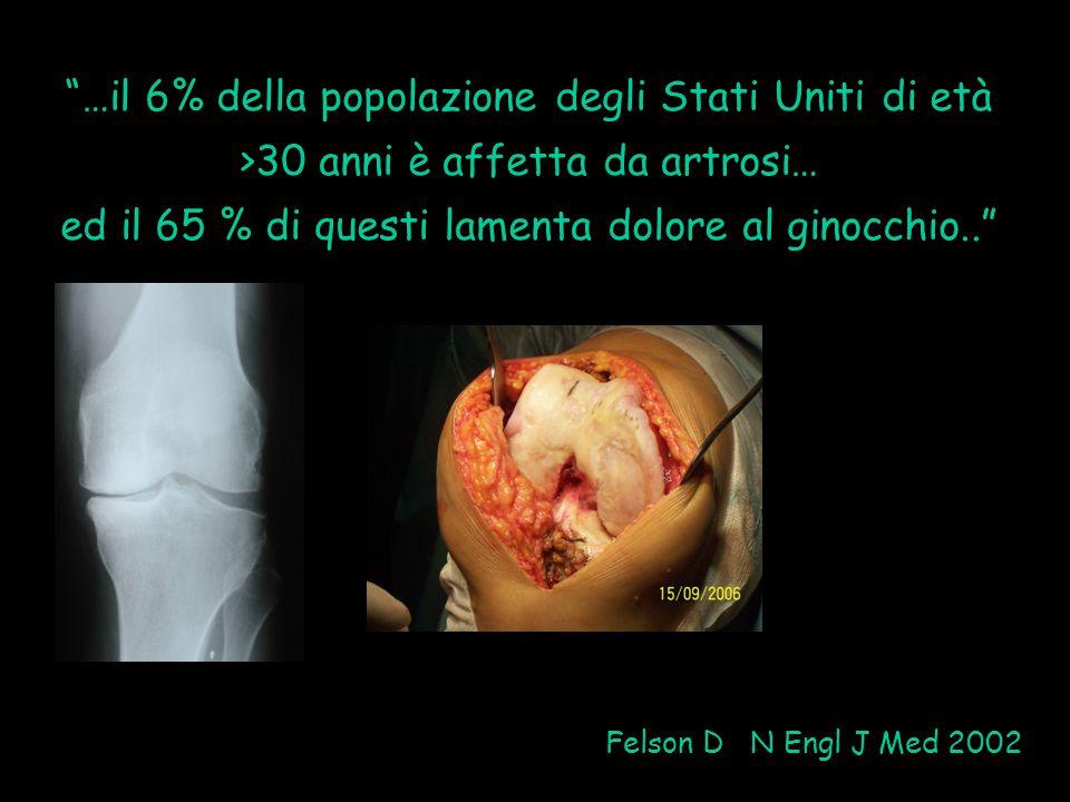 """""""…il 6% della popolazione degli Stati Uniti di età >30 anni è affetta da artrosi… ed il 65 % di questi lamenta dolore al ginocchio.."""" Felson D N Engl"""