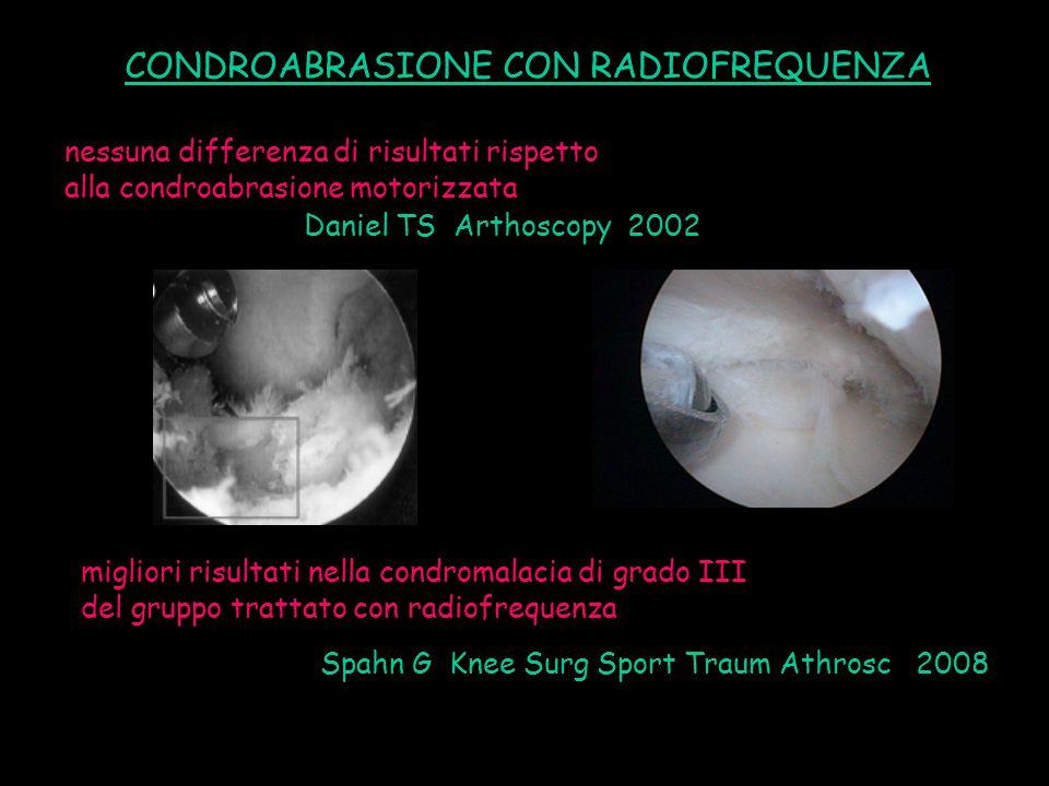 Daniel TS Arthoscopy 2002 Spahn G Knee Surg Sport Traum Athrosc 2008 CONDROABRASIONE CON RADIOFREQUENZA nessuna differenza di risultati rispetto alla