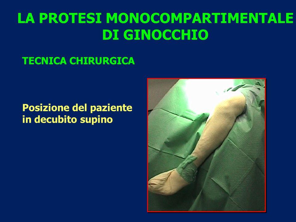 LA PROTESI MONOCOMPARTIMENTALE DI GINOCCHIO TECNICA CHIRURGICA Posizione del paziente in decubito supino