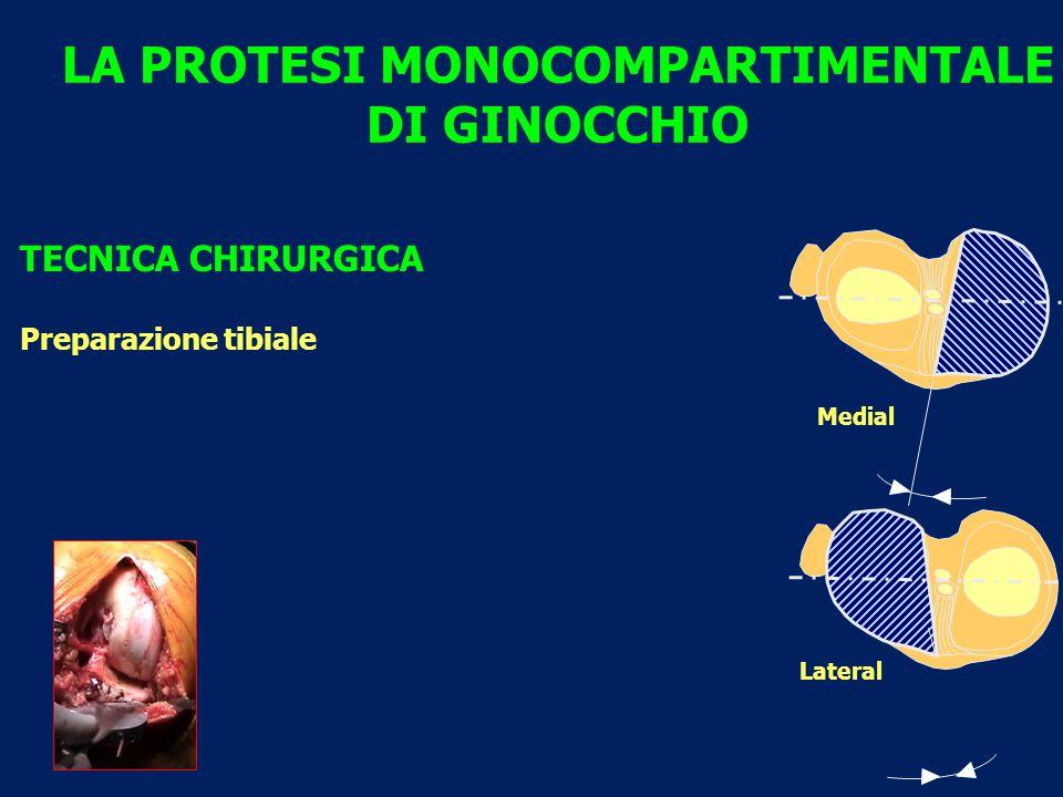 Medial Lateral LA PROTESI MONOCOMPARTIMENTALE DI GINOCCHIO TECNICA CHIRURGICA Preparazione tibiale