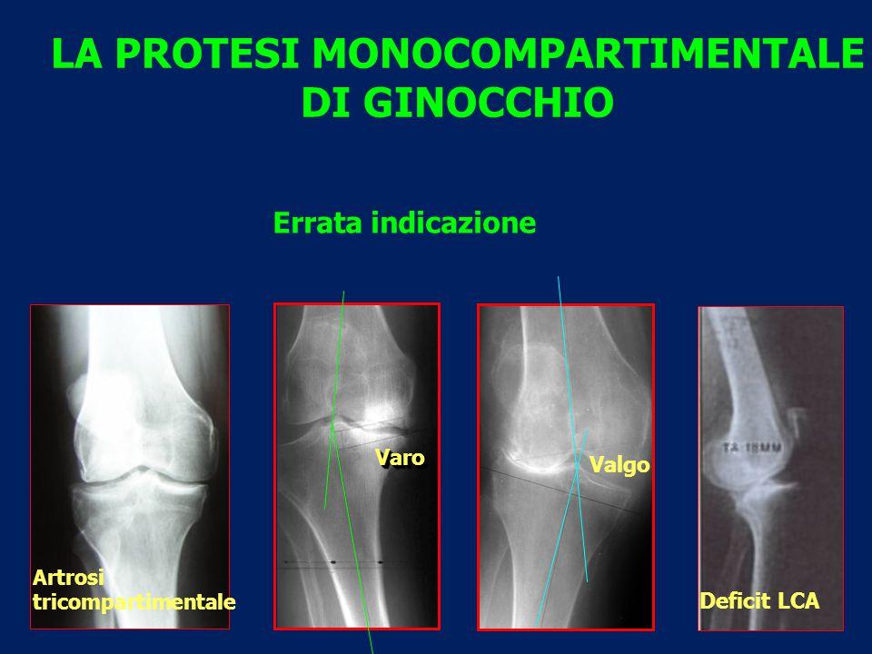 VaroVaro LA PROTESI MONOCOMPARTIMENTALE DI GINOCCHIO Valgo Artrosi tricompartimentale Errata indicazione Deficit LCA
