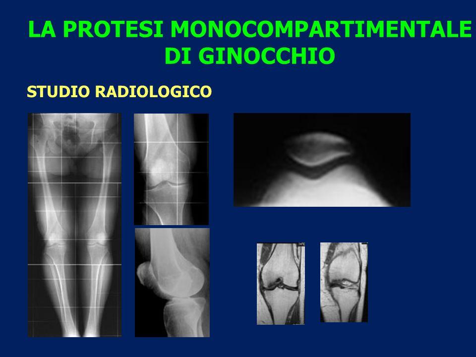 LA PROTESI MONOCOMPARTIMENTALE DI GINOCCHIO STUDIO RADIOLOGICO