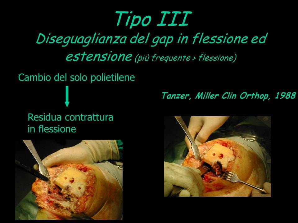 Tipo III Diseguaglianza del gap in flessione ed estensione (più frequente > flessione) Cambio del solo polietilene Tanzer, Miller Clin Orthop, 1988 Re