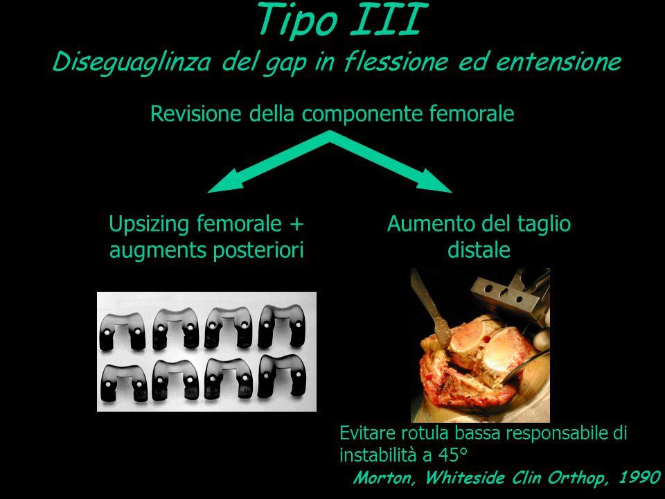 Tipo III Diseguaglinza del gap in flessione ed entensione Revisione della componente femorale Upsizing femorale + augments posteriori Aumento del tagl