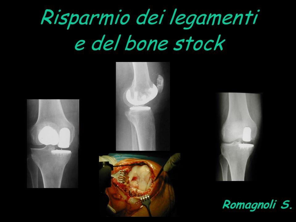 Risparmio dei legamenti e del bone stock Romagnoli S.