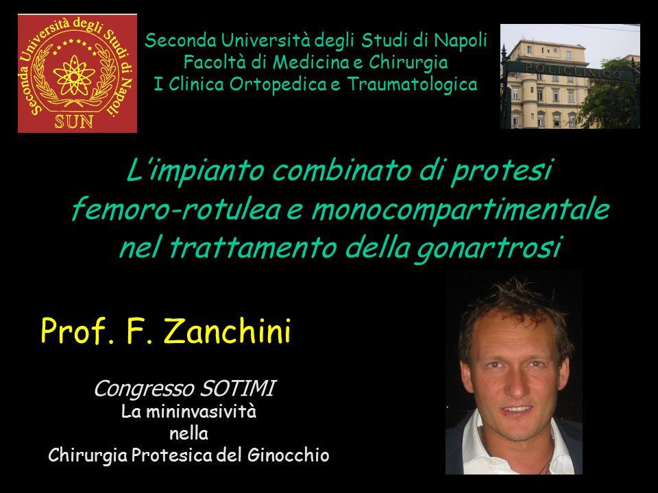 Seconda Università degli Studi di Napoli Facoltà di Medicina e Chirurgia I Clinica Ortopedica e Traumatologica L'impianto combinato di protesi femoro-