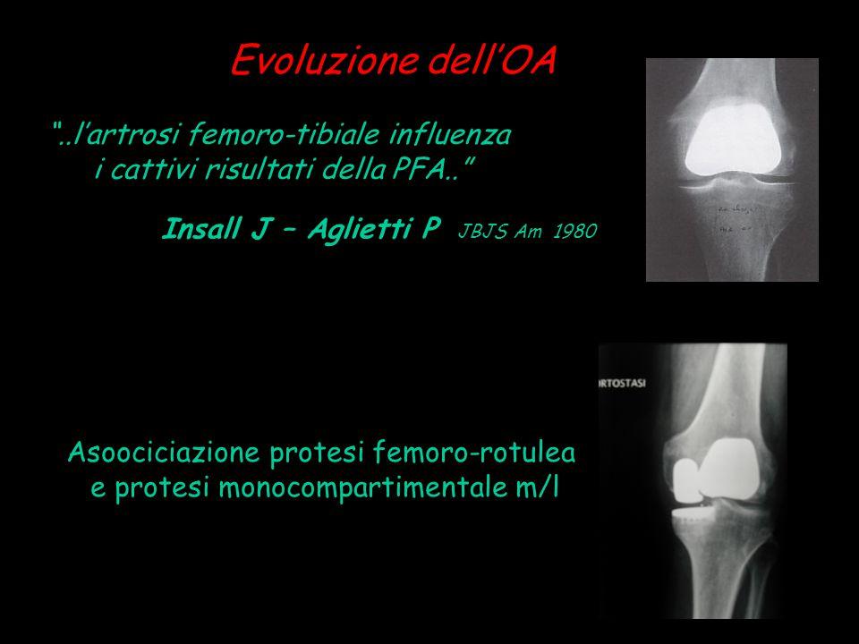"""Insall J – Aglietti P JBJS Am 1980 Evoluzione dell'OA Asoociciazione protesi femoro-rotulea e protesi monocompartimentale m/l """"..l'artrosi femoro-tibi"""