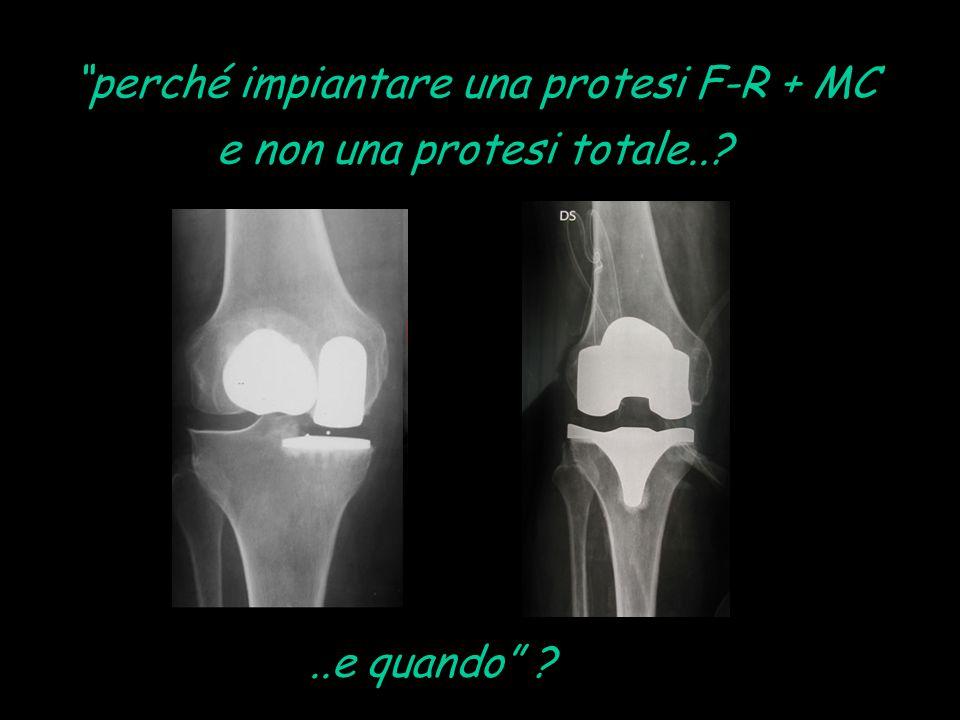 """""""perché impiantare una protesi F-R + MC e non una protesi totale..?..e quando"""" ?"""