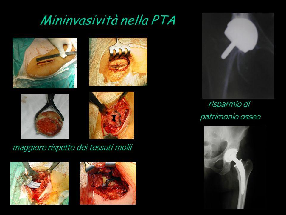 Mininvasività nella PTA risparmio di patrimonio osseo maggiore rispetto dei tessuti molli