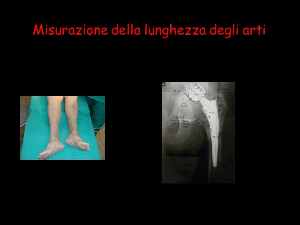 Misurazione della lunghezza degli arti