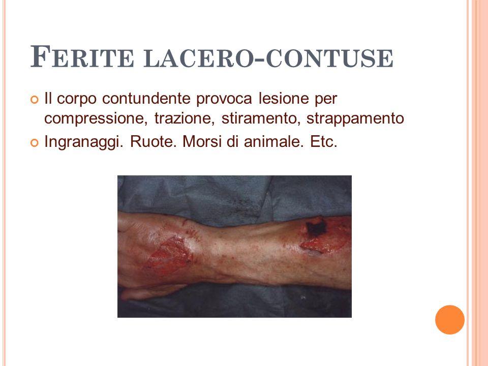 F ERITE LACERO - CONTUSE Il corpo contundente provoca lesione per compressione, trazione, stiramento, strappamento Ingranaggi. Ruote. Morsi di animale