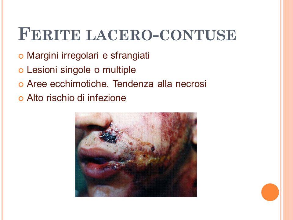 F ERITE LACERO - CONTUSE Margini irregolari e sfrangiati Lesioni singole o multiple Aree ecchimotiche. Tendenza alla necrosi Alto rischio di infezione