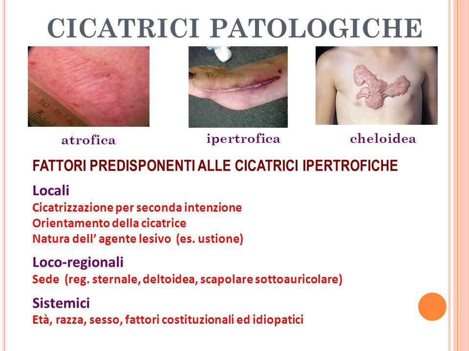 CICATRICI PATOLOGICHE FATTORI PREDISPONENTI ALLE CICATRICI IPERTROFICHE Locali Cicatrizzazione per seconda intenzione Orientamento della cicatrice Nat