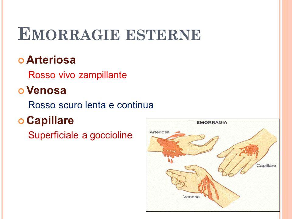 E MORRAGIE ESTERNE Arteriosa Rosso vivo zampillante Venosa Rosso scuro lenta e continua Capillare Superficiale a goccioline