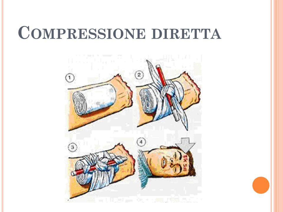 C OMPRESSIONE DIRETTA