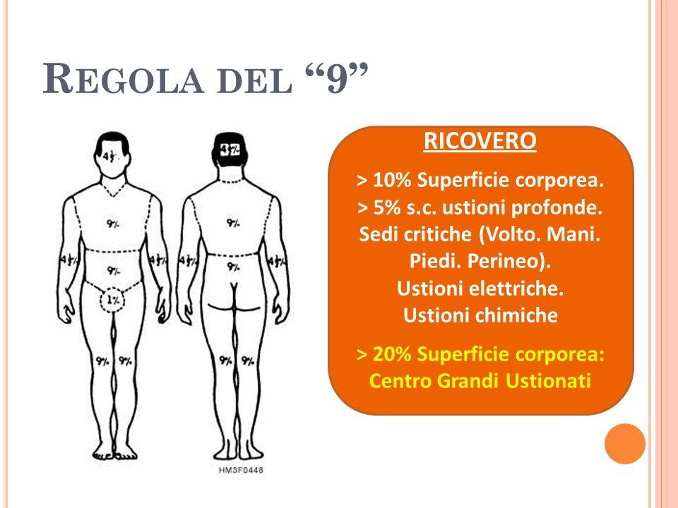 """R EGOLA DEL """"9"""" RICOVERO > 10% Superficie corporea. > 5% s.c. ustioni profonde. Sedi critiche (Volto. Mani. Piedi. Perineo). Ustioni elettriche. Ustio"""