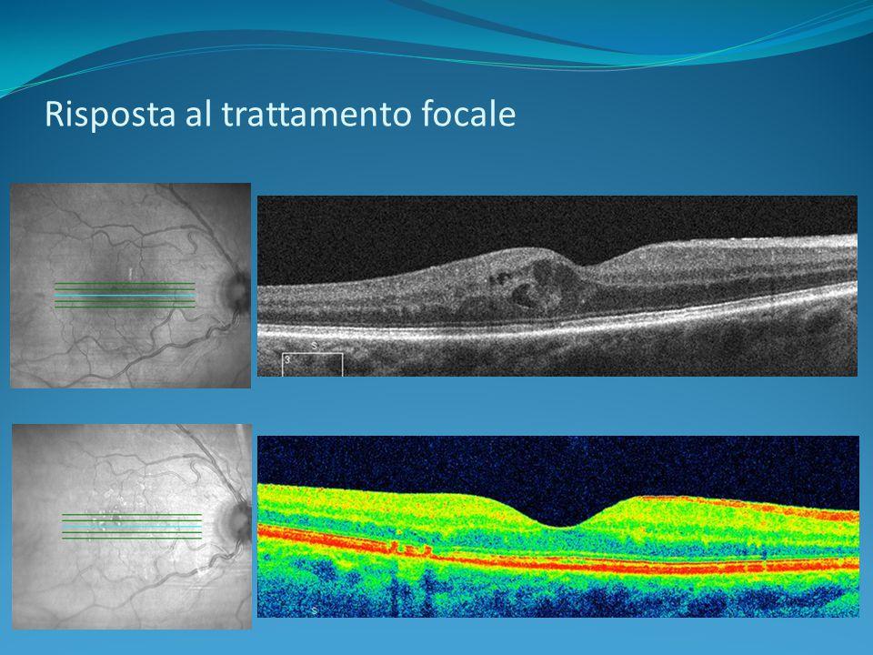 Risposta al trattamento focale