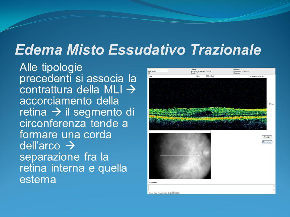 Edema Misto Essudativo Trazionale Alle tipologie precedenti si associa la contrattura della MLI  accorciamento della retina  il segmento di circonfe