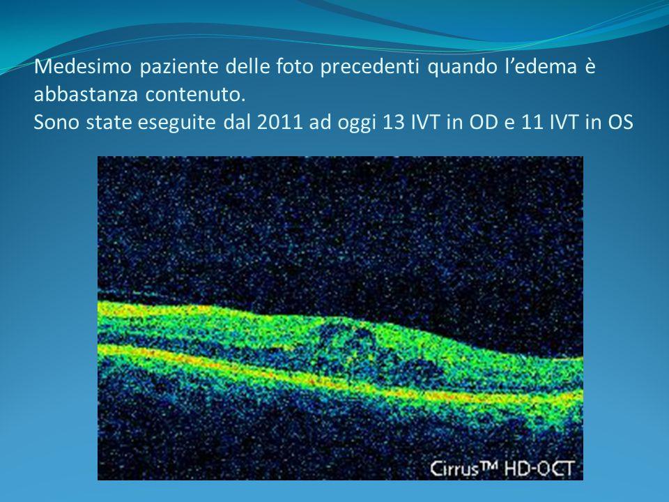 Medesimo paziente delle foto precedenti quando l'edema è abbastanza contenuto. Sono state eseguite dal 2011 ad oggi 13 IVT in OD e 11 IVT in OS