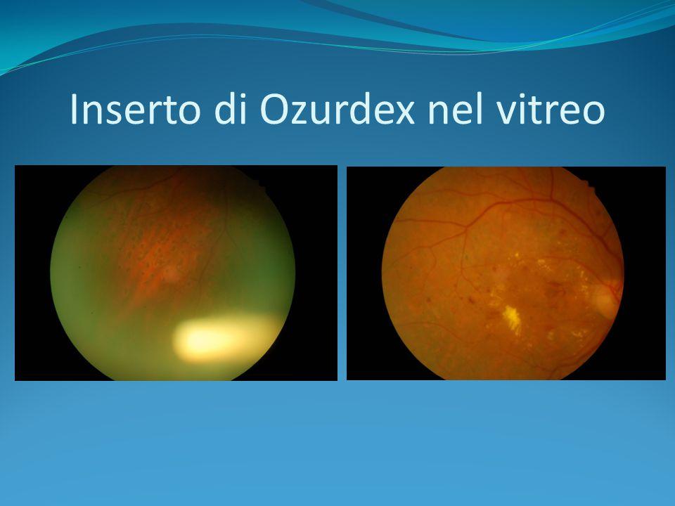 Inserto di Ozurdex nel vitreo